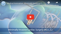 Minimally Invasive Heart Surgery: How & Why