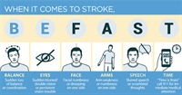Think Stroke? Be Fast!